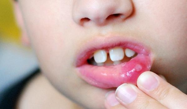 стоматит у детей. лечение. фото