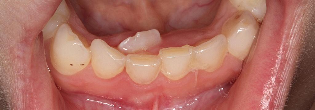 корни молочных зубов фото